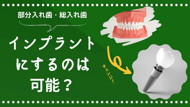 入れ歯からインプラント