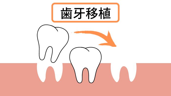 歯牙移植とは?インプラントとの違い