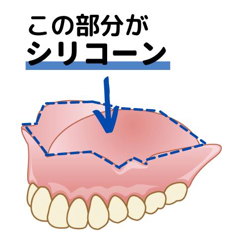 コンフォート義歯