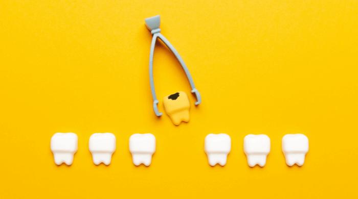 なぜ入れ歯になるのか?歯を失う原因TOP3
