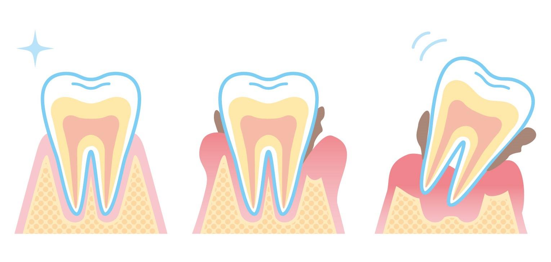 抜ける原因になる歯の特徴!リスクが高いのは?