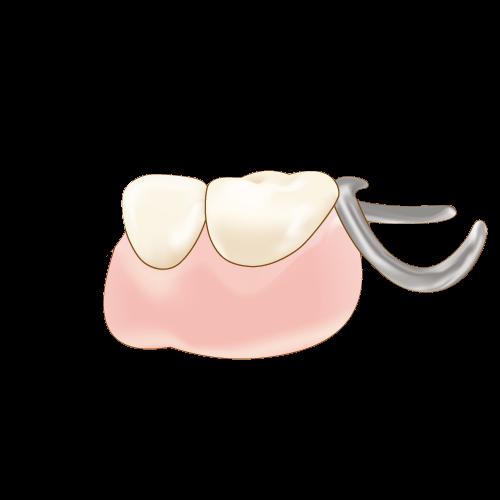 部分入れ歯(奥歯)