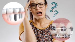 インプラント矯正とは?2つの治療法