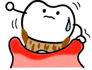 インビザライン 歯周病