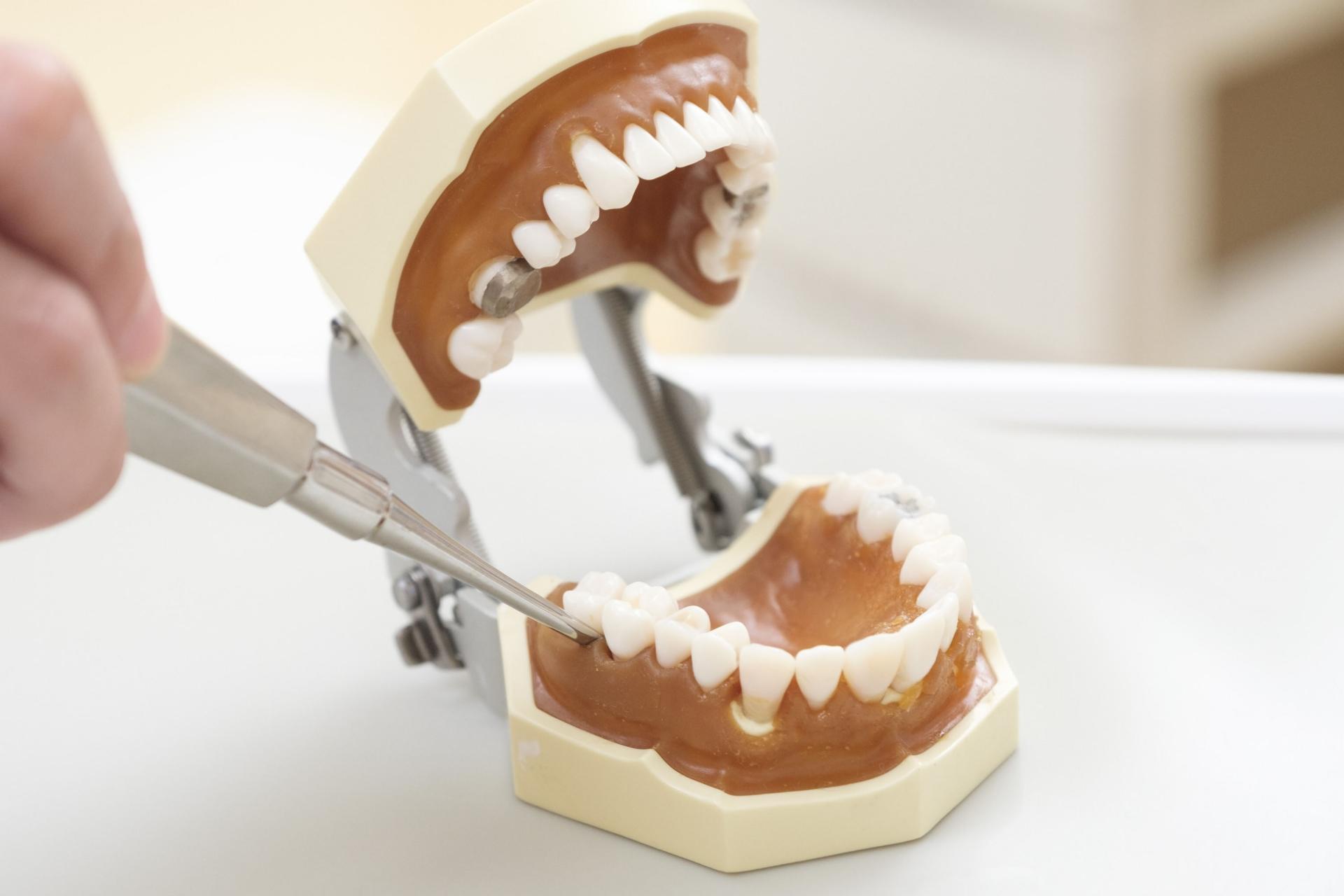 インビザライン 抜歯 タイミング