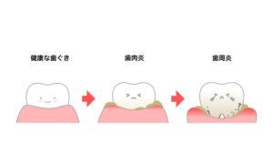 インビザライン 歯肉炎