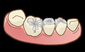 インビザライン 詰め物銀歯