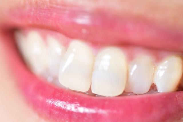 インビザライン 前歯