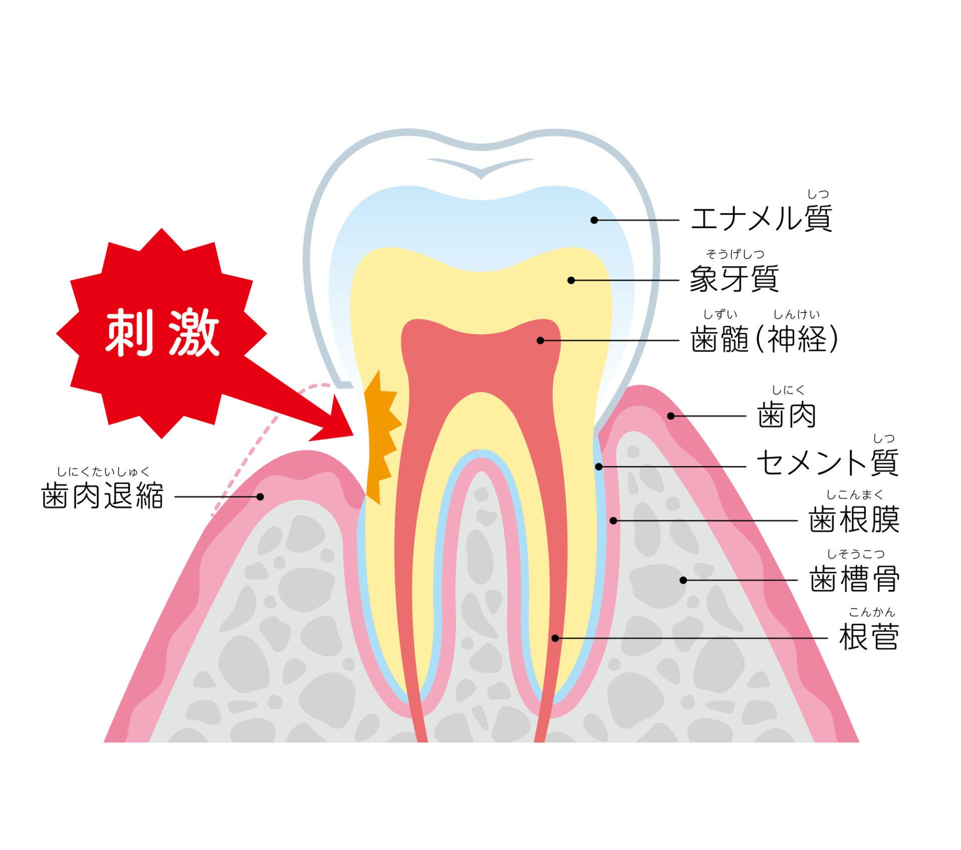 インビザライン 歯肉退縮
