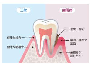インビザライン 歯石