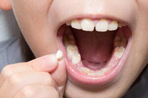 小児 子供の歯 グラグラ