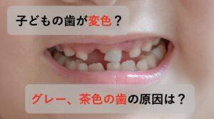 子供の歯の変色の理由と対処法