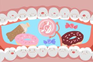 インビザライン 砂糖